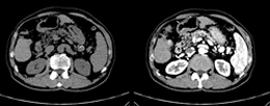腹部領域CT