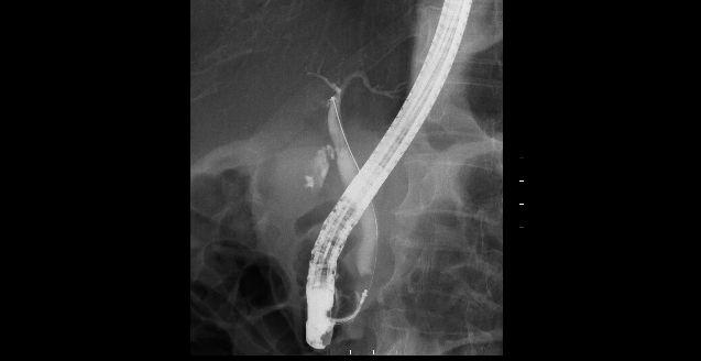 ERCP(内視鏡的逆行性胆管膵管)