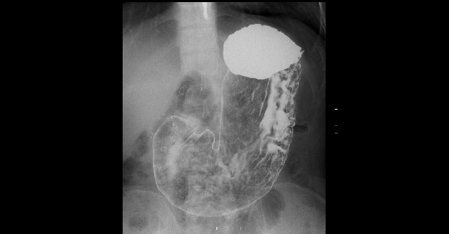 胃十二指腸造影